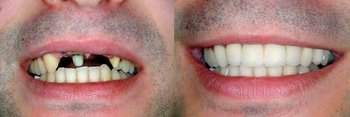Smile Gallery - Pearly White Dental, Chicago Dentist