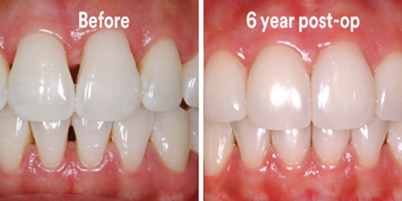 BioClear Diastema Closure and Black Triangle Closure  - Pearly White Dental, Chicago Dentist