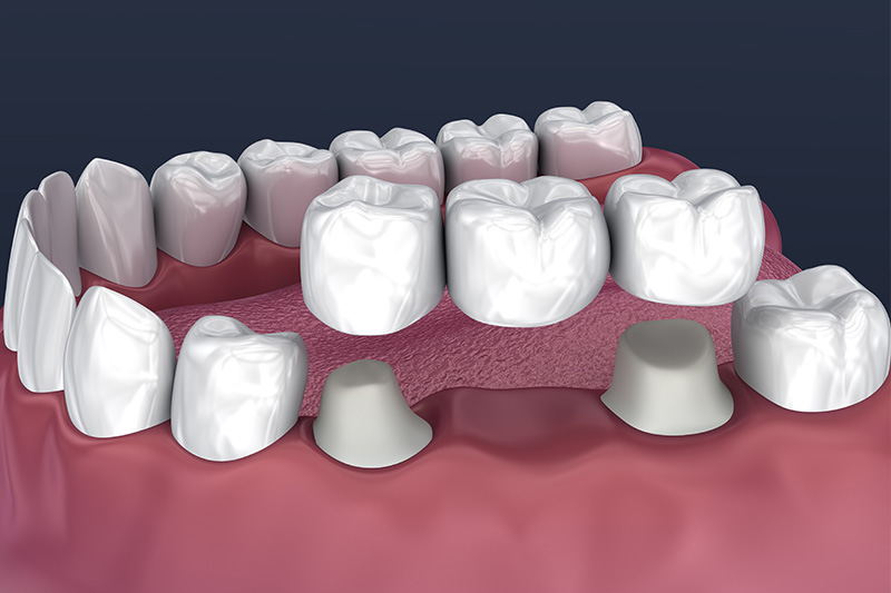 Crowns and Bridges, Inlays and Onlays  - Pearly White Dental, Chicago Dentist