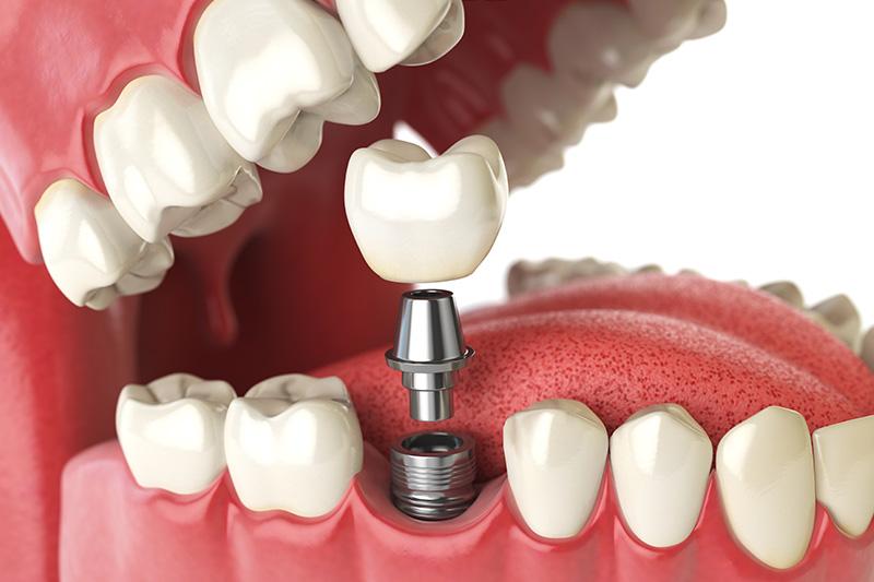 Dental Implants - Pearly White Dental, Chicago Dentist