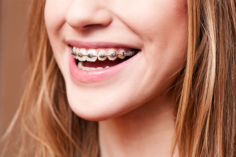 Orthodontics - Estrella Dental, Chicago Dentist