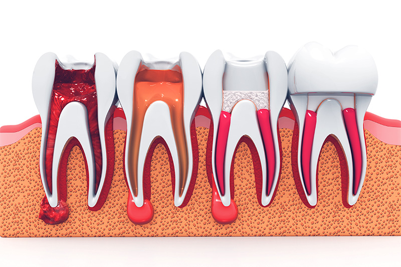 Root Canal Therapy  - Pearly White Dental, Chicago Dentist