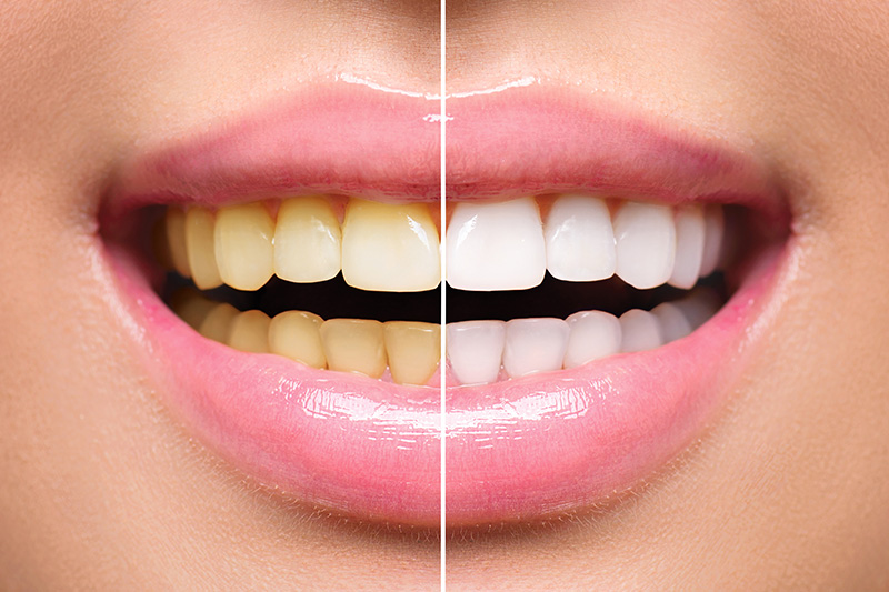 Teeth Whitening - Estrella Dental, Chicago Dentist